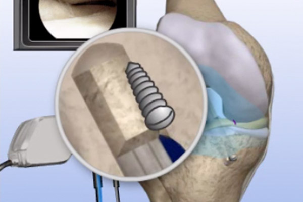 Torn ACL Allograft