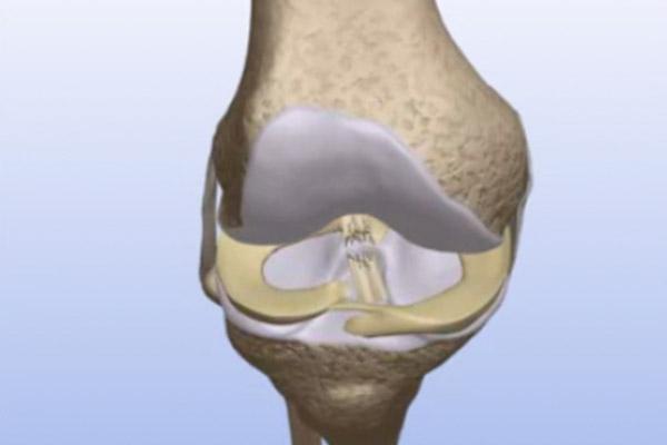 Torn ACL Quadriceps Tendon Graft