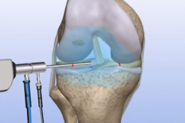 Cartilage Transplants – Autograft