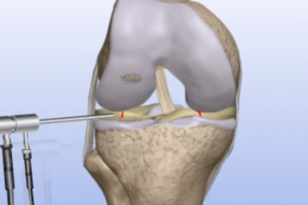 Articular Cartilage Problems – Drilling/Microfracture