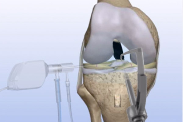 Torn ACL Anatomic Footprint Reconstruction