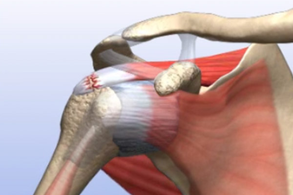 Fully Torn Rotator Cuff