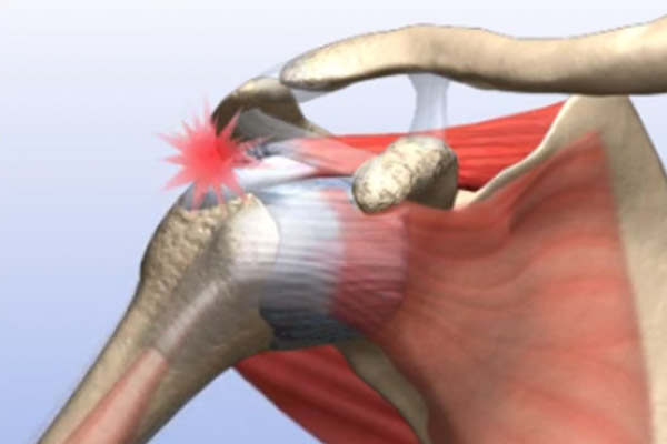 Partially Torn Rotator Cuff
