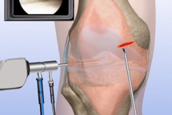 Patella Pain—Removal of Painful Plica