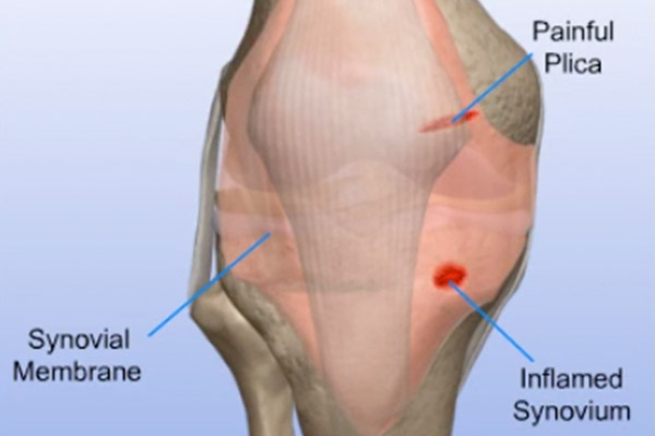 Synovial Problems—Removal of Inflamed Synovium