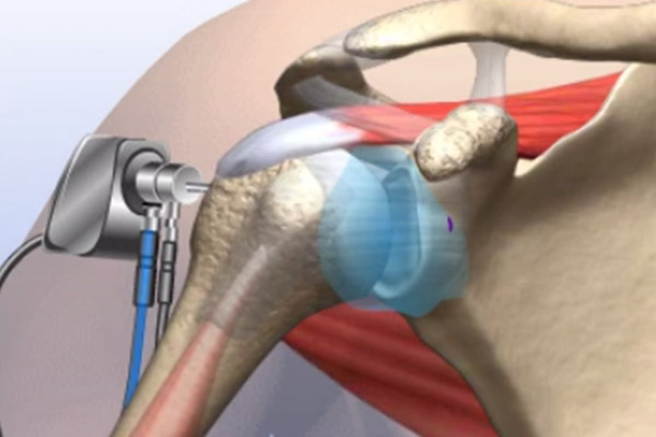 Diagnostic Arthroscopy