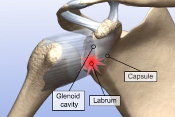 Repair of Detached Labrum