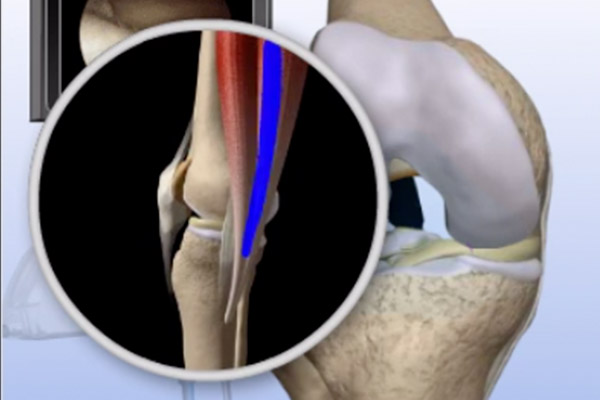 Torn ACL Hamstring Graft