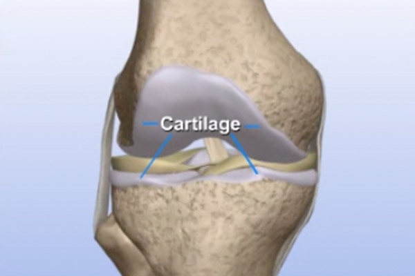 Cartilage Transplants – Allograft