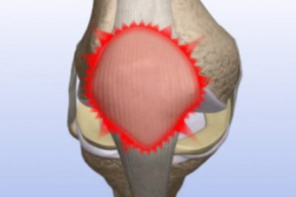 Patella Pain—Removal of Damaged Cartilage