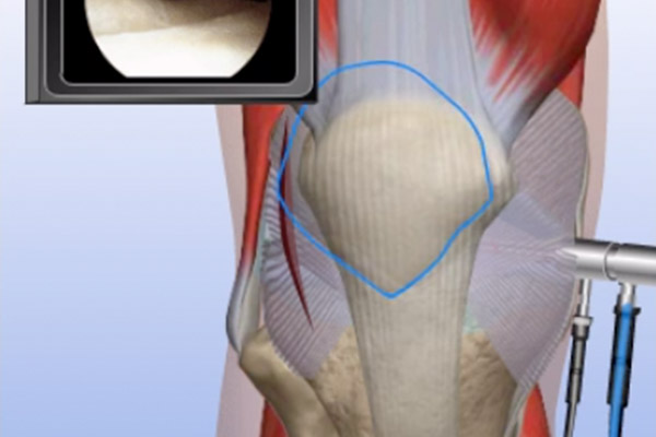 Patella Pain—Patella Realignment