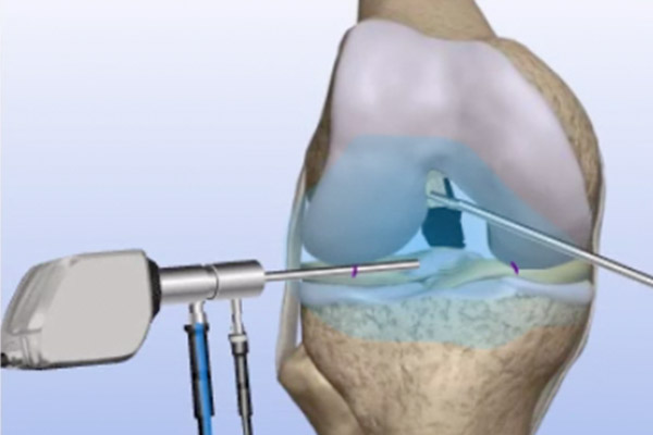 Torn ACL Bone – Patellar Tendon-Bone Graft
